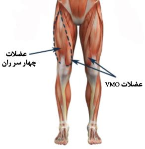 تقویت عضلات چهار سر ران برای آرتروز زانو