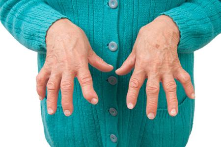 نتیجه تصویری برای آرتروز انگشتان  دست