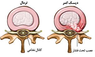 نتیجه تصویری برای تصاویر درد های سیاتیکی