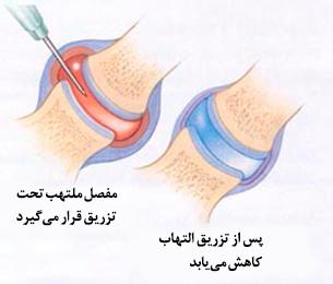 نتیجه تصویری برای تزریق کورتون درمفصل شانه